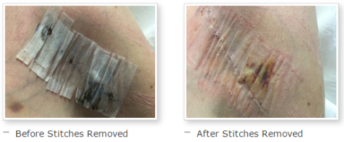 Before and after stitches removed